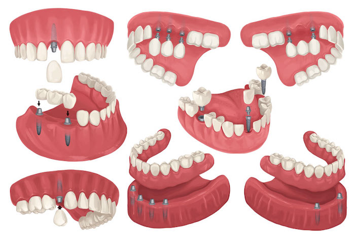 Drawing of different configurations of dental implants to replace missing teeth