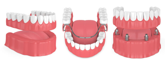 Closeup of 3 different types of dentures in Westwood, KS, at Sullivan Family Dental